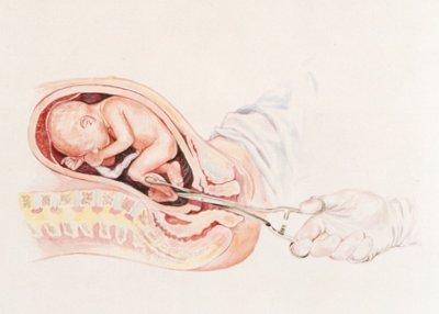 aborto-en-el-embarazo